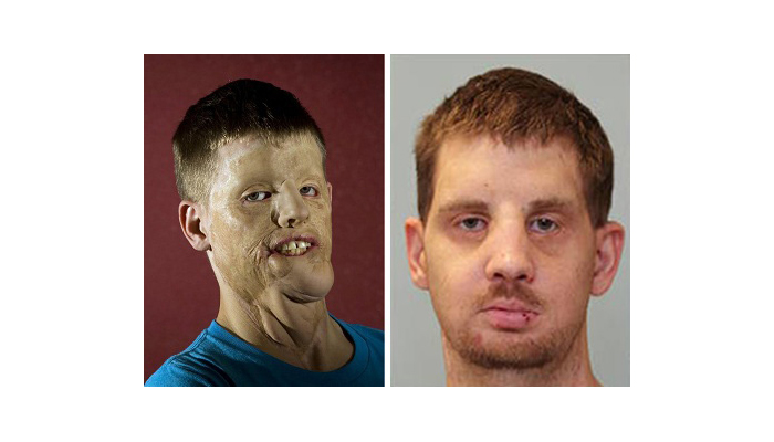 Mitch Hunter Before and After Photos