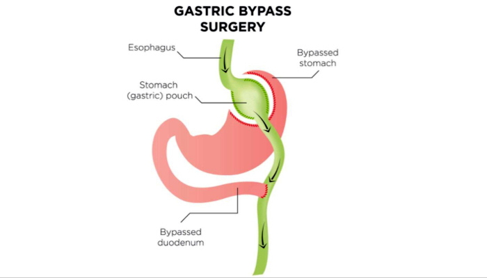 This is a medical illustration of the gastric bypass procedure