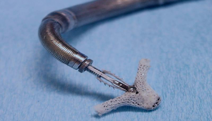 This is a photo of the MitraClip, the transcatheter mitral valve repair therapy.