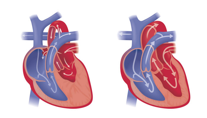 Fetal hypoplastic left heart syndrome illustration
