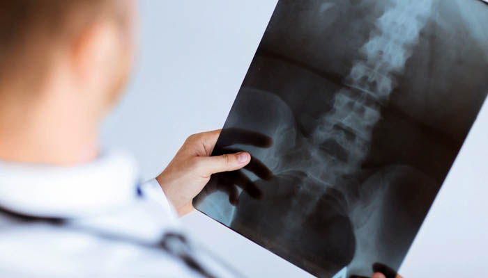 doctor looking at xray of lower spine