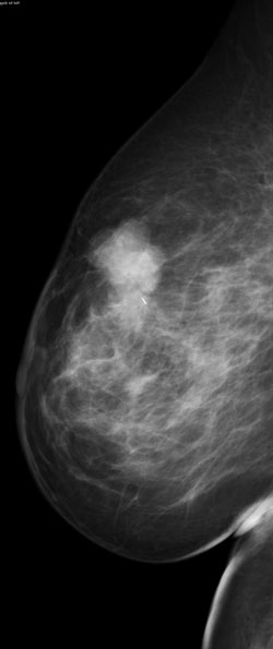 Palpable mass in the upper breast