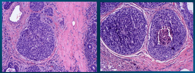 High power view histopathology (H & E)