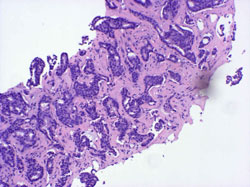 Stereotactic Core Biopsy Histopathology