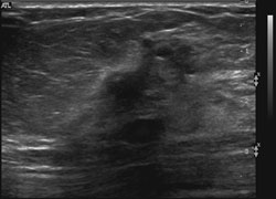 Ultrasound demonstrates a dominant spiculated and irregular hypoechoic mass