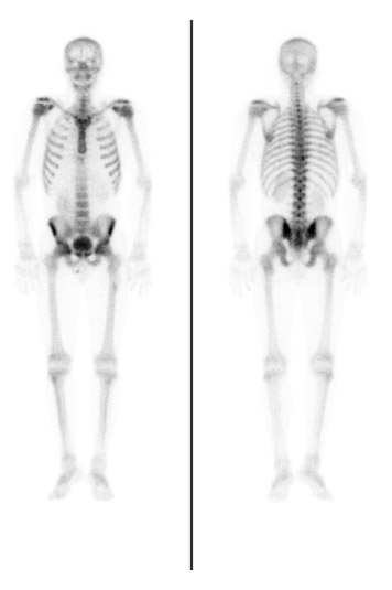 Nuclear Medicine Patient Education Bone Scan