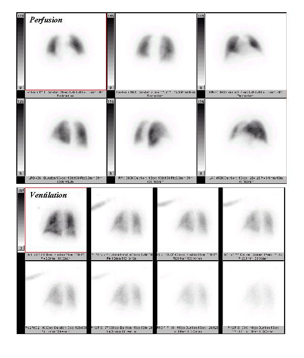 Nuclear Medicine Patient Education Lung Scan