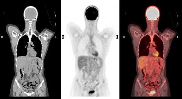 Nuclear Medicine Patient Education PET Scan