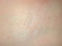 Hair Removal After