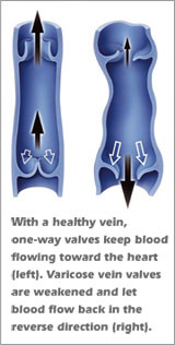 visual comparison of healthy vein and varicose vein