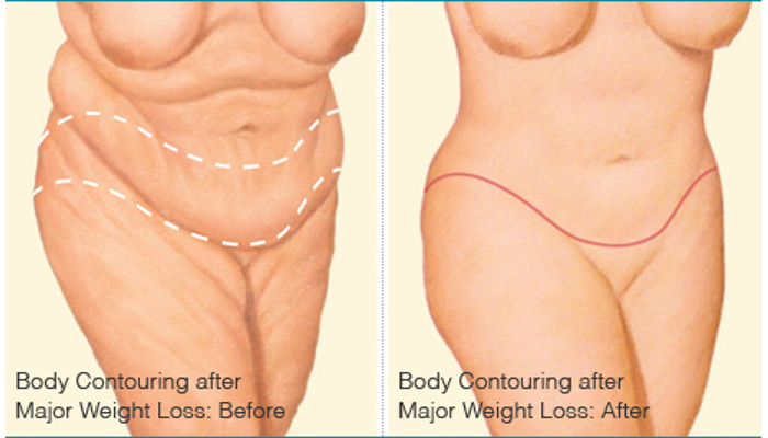 Body Contouring after Weight Loss - Brigham and Women's Hospital