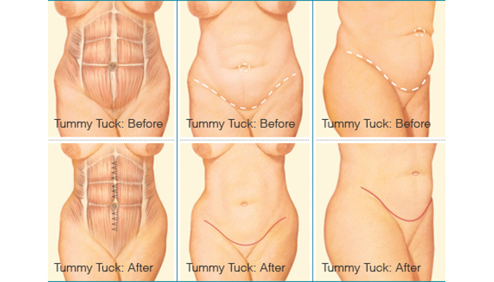 Tummy Tuck Plastic Surgery - Brigham and Women's Hospital