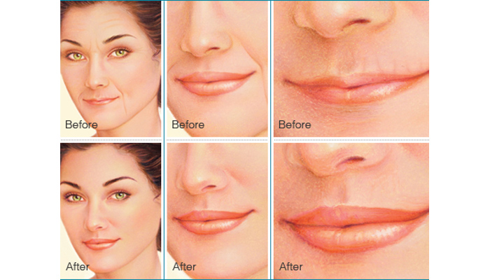 Botox and Dermal Fillers - Brigham and Women's Hospital