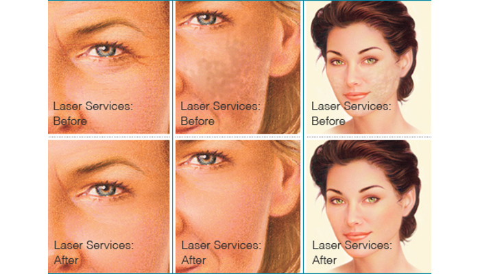 skin rejuvenation laser services