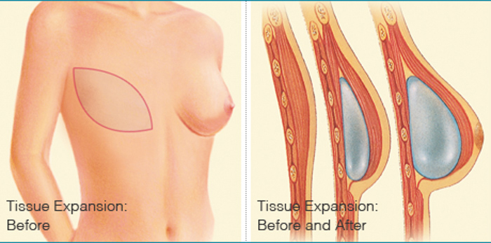 Before and After - Breast Implants after Mastectomy