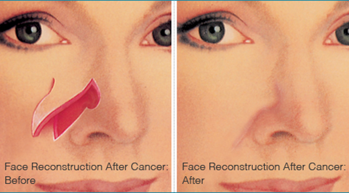 Reconstructive Procedures Reconstruction After Cancer Surgery