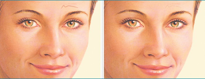 Reconstructive Procedures Skin Scar Deep