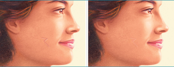 Scar Revision Skin Procedure - Brigham and Women's Hospital