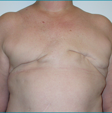 Recontructive Procedures Breast DIEP Bilateral Delayed Before