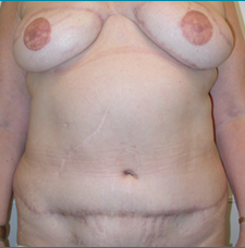 Recontructive Procedures Breast DIEP Bilateral Delayed After