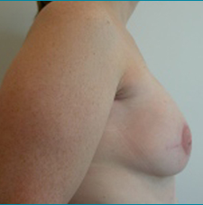 Recontructive Procedures Breast DIEP Bilateral Immediate After