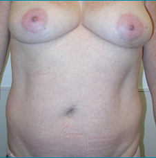 Recontructive Procedures Breast DIEP Bilateral Immediate Before