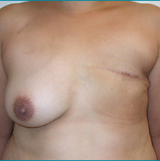Recontructive Procedures Breast DIEP Unilateral Delayed Before