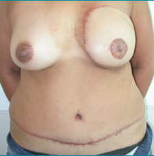 Recontructive Procedures Breast DIEP Unilateral Delayed After